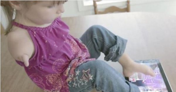 Young Girl Born Without Arms Has Strong Determination And Spirit